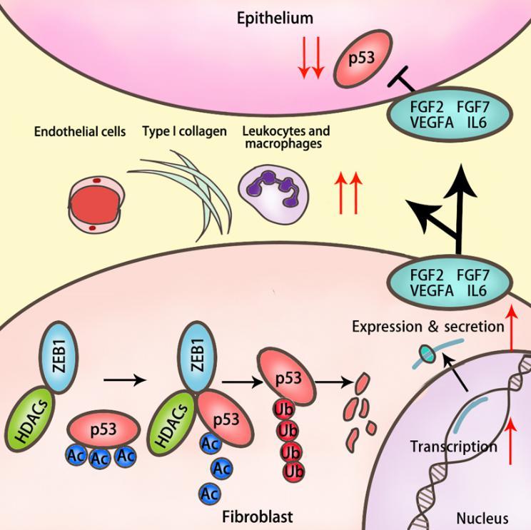 吴照球团队在Nature子刊Nature Communications报道锌指转录因子ZEB1在乳腺癌发生发展中的新机制