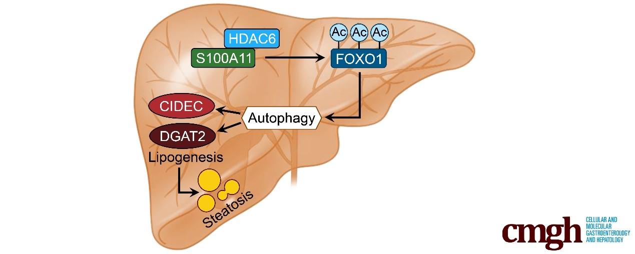 生命科学学院梁斌团队发现新的非酒精性脂肪肝致病因子